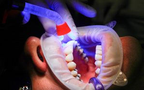 Jak zakłada się implanty zębowe?